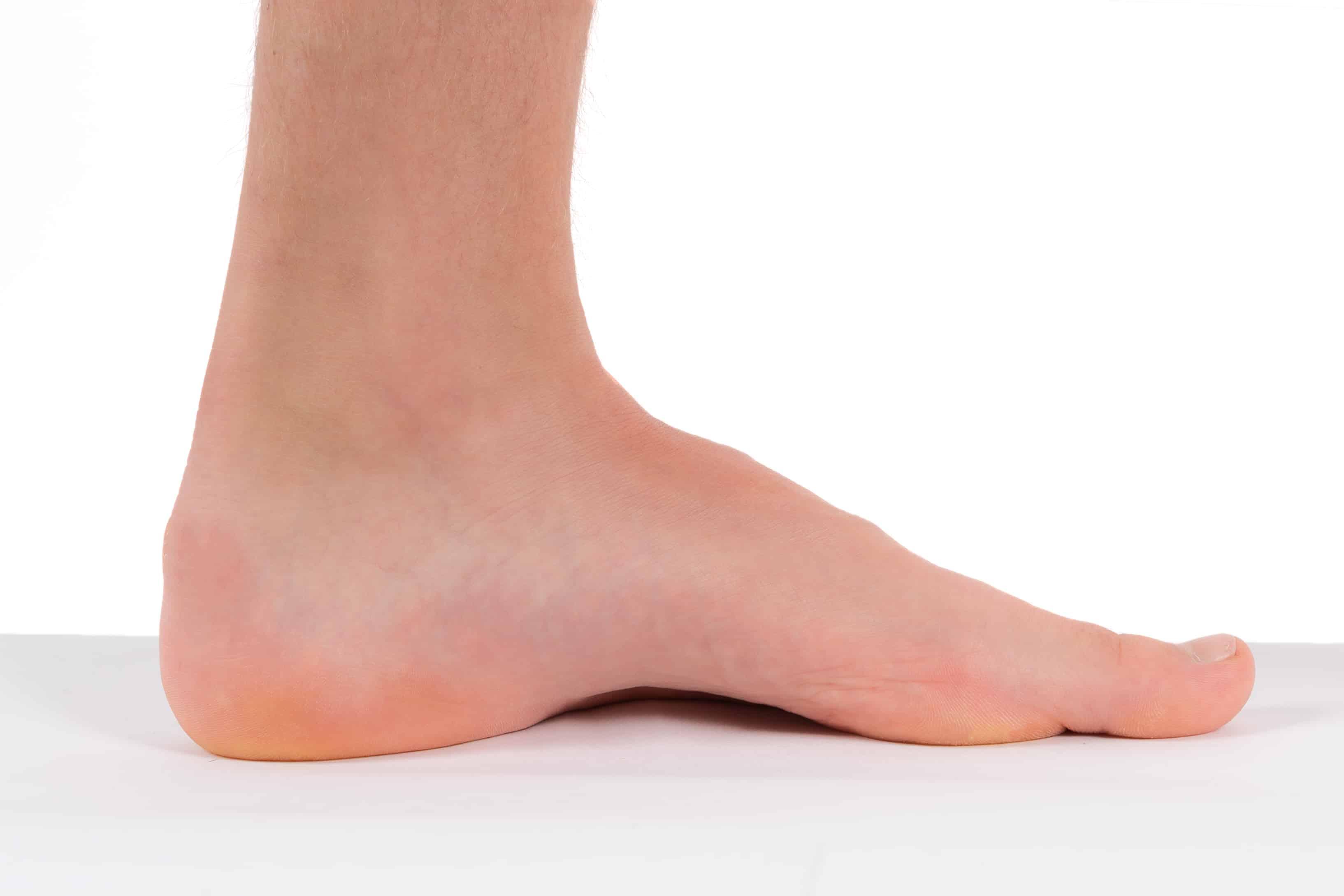 Steunzolen holle voeten